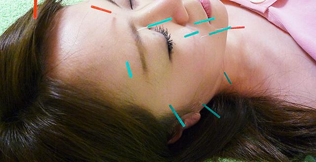 イーズ鍼灸マッサージ院 美容鍼